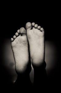 Flat Feet (Flatfoot) - Symptoms and Treatments