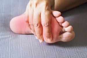 Plantar Warts - Symptoms and Causes