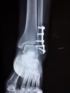 What are stress fractures